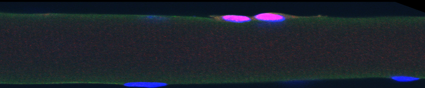 Satellite cells on a muscle fiber